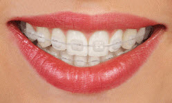 affiliated-orthodontics-peoria-az-clarity-ceramic