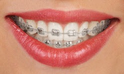 affiliated-orthodontics-peoria-az-clarity-metal
