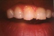 Grinding teeth Peoria AZ