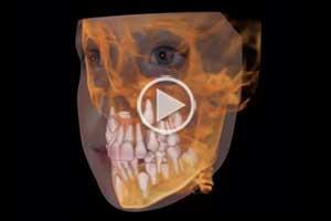 3D Image Affiliated Orthodontics Peoria AZ