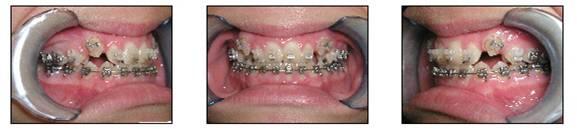 affilaited-orthodontics-peoria-az-set-3