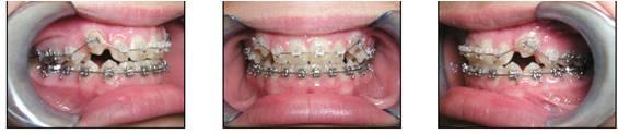 affilaited-orthodontics-set-4