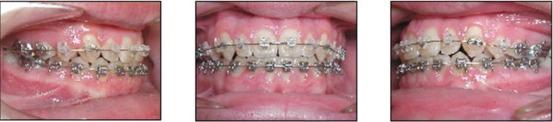 affilaited-orthodontics-set-5