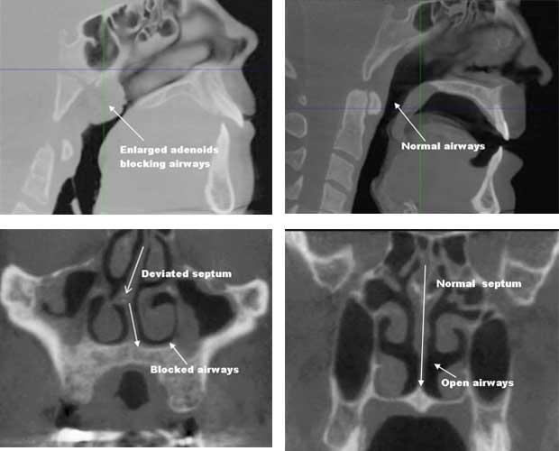 affiliated-orthodontics-peoria-az-3d-dental-imaging