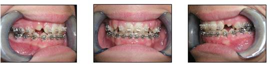 affiliated-orthodontics-peoria-az-set-1