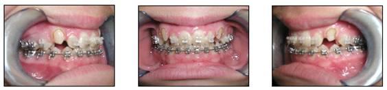 affiliated-orthodontics-peoria-az-set-2