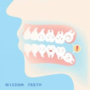 Wisdom Teeth - Peoria AZ