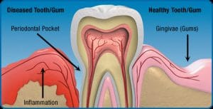Gum Disease Myths Cincinnati OH